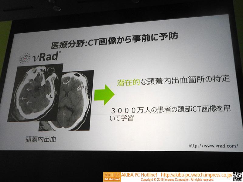 医療分野での事例。CT画像から、潜在的な頭蓋内出血箇所の特定を行なう