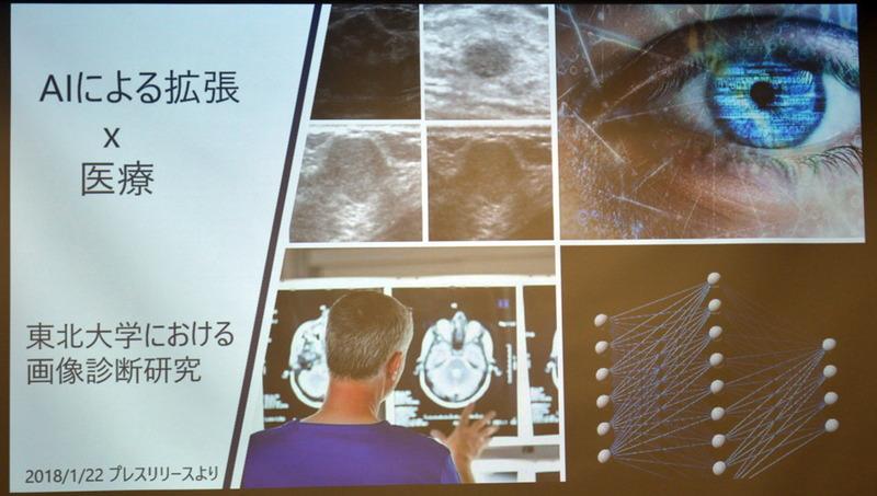 SASが取り組む社会貢献のひとつがAI×医療のコラボレーション。その一環として東北大学と共同で、膨大な画像から乳がんの症例を見つけるプロジェクトを展開中