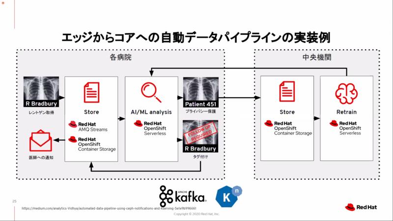 サーバーレスを使ったデータパイプラインの例