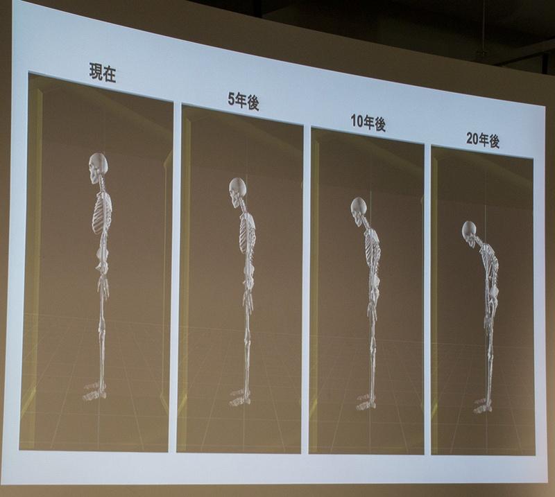 ノートパソコンで長時間デスクワークをしている患者(20代女性)の現在の姿勢から、20年後を予測した画像。20年後には首だけでなく、腰から前傾姿勢になっている。