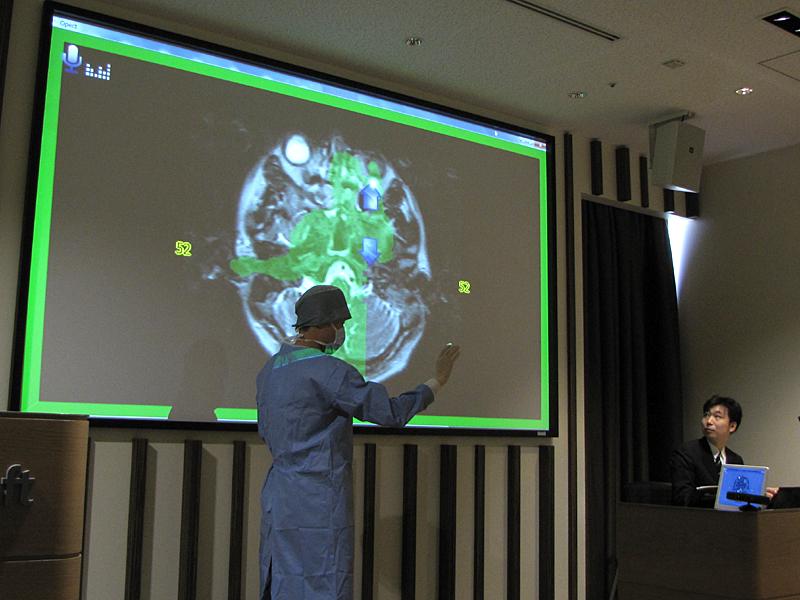 Kinectで手の動きを感知することにより、キーボードなどに触れることなく、手術室内で資料の表示操作が行える「Opect」のデモ