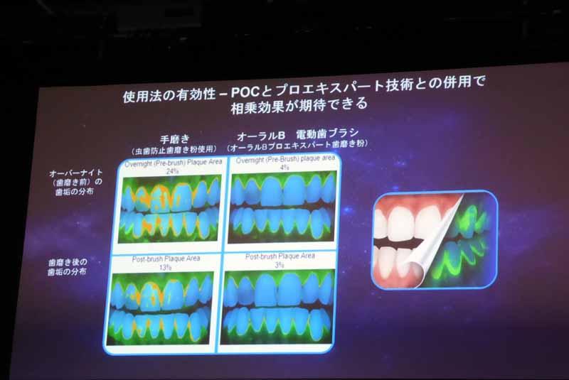 一般的な歯磨きと比較すると、磨き残しは圧倒的に少ない。一晩経ってもバクテリアの繁殖が抑えられている