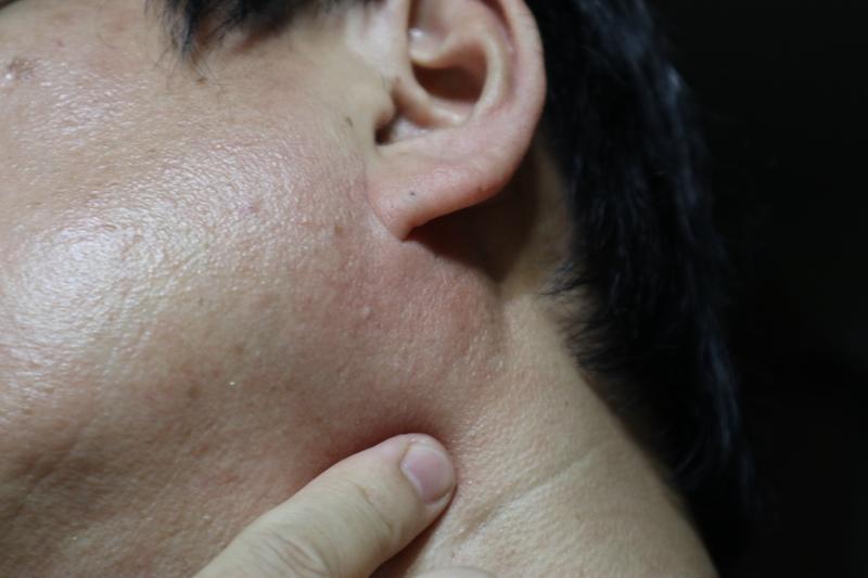 首の左右で脈打つ動脈を捜す。真横よりちょっと前側(あごの付け根あたり)にある