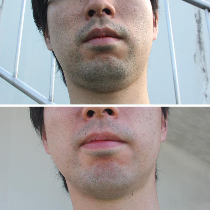 記者も24時間剃らなかったヒゲをラムダッシュでシェービング。短いヒゲもしっかりと捕えている印象があった(写真上/シェービング前、下/シェービング後)