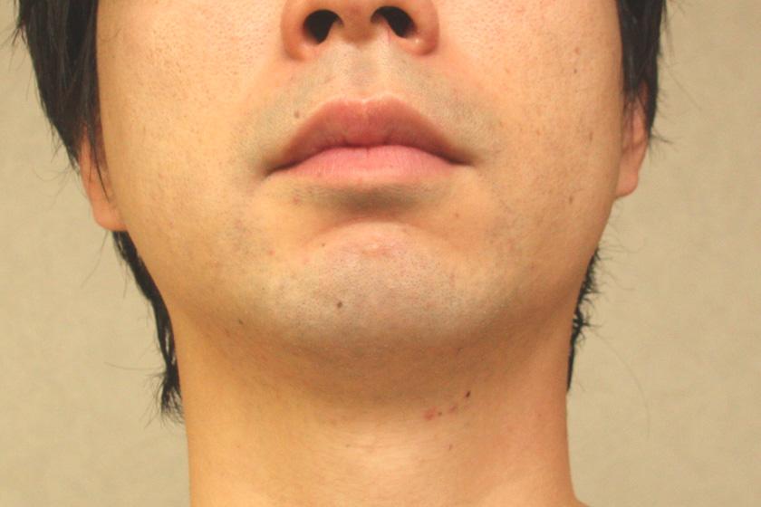 肌への負担もなく、ちゃんと剃れました。シェービング後の肌の潤い感も良い
