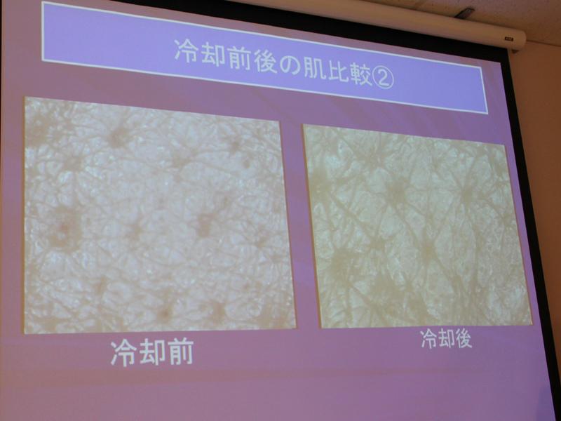 こちらは亀山院長が自ら肌を4℃冷やした写真(右)。左の冷やす前と比べ、毛穴や血管が締まっている