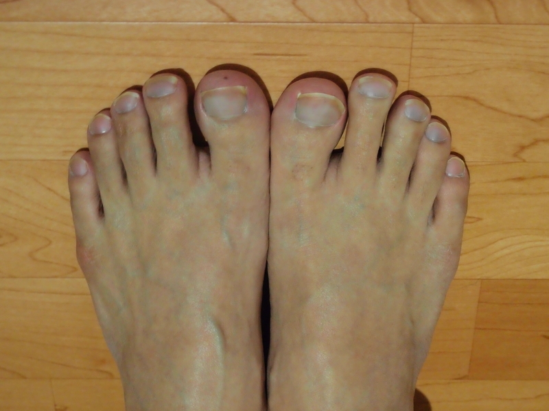 冷えた右足は、爪の血色が悪くなった(特に薬指)