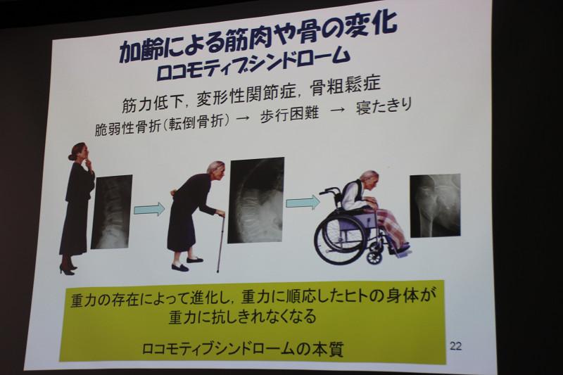 筋力の低下などにより歩行困難を引き起こす可能性がある