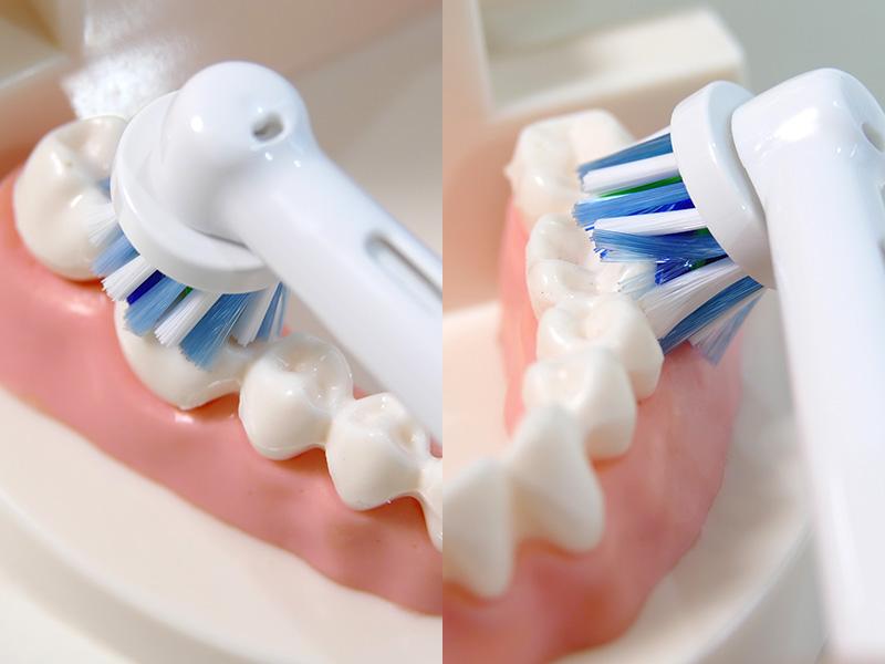 奥歯の上面に10秒、側面は歯に対して斜め45度に当てると歯と歯ぐきの隙間にもブラシが入り、プラークが効果的に除去できる