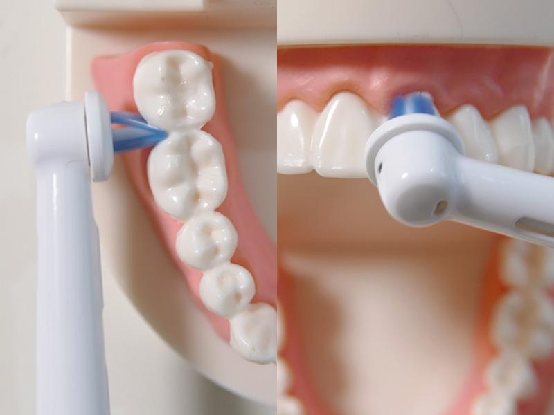 歯間用ブラシは歯間や歯と歯ぐきの境目にしっかり入り込む。ブリッジや差し歯のケアにも威力を一層発揮する