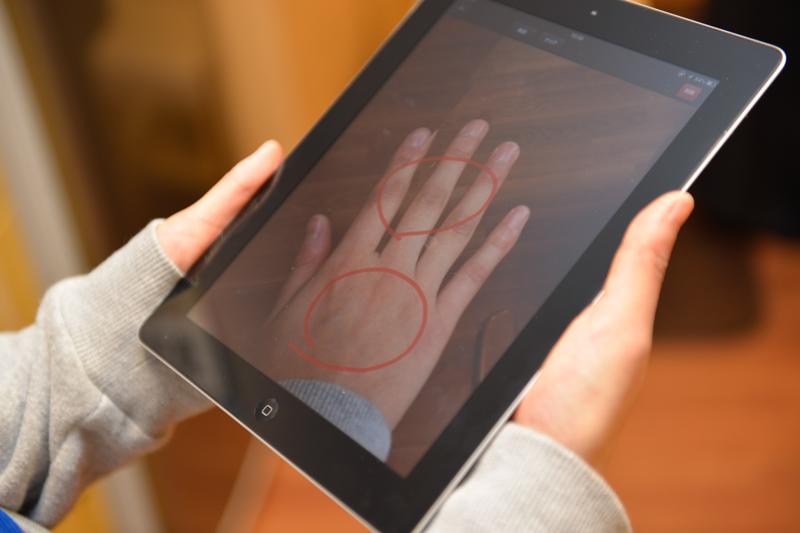 入居者側の画面。医師と共有した画像にリアルタイムに指示が反映されている。この写真は「軟膏を塗るならこのあたり」といった指示のイメージ