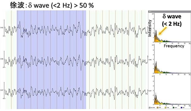 パッチ式脳波センサーで取得した成人男性の睡眠脳波の一例。深い睡眠時に見られる2Hz以下の遅い波(徐波)を示している