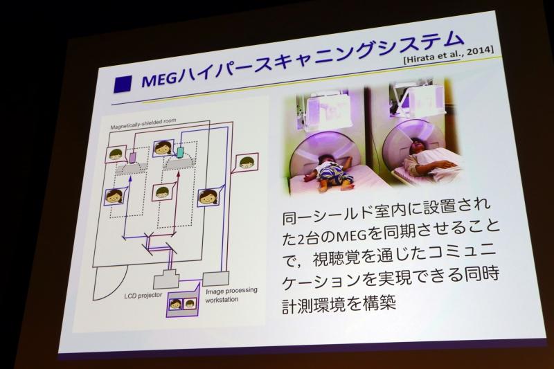 MEGハイパースキャニングシステム
