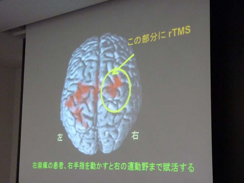 rTMSをあてる例。過剰な働きを抑える