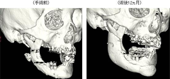カスタムメイド人工骨による骨欠損の治療