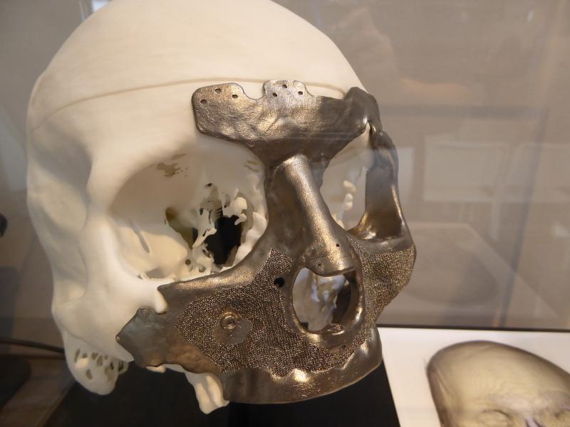 チタン製インプラント。顔面と上顎正面の広範囲を負傷した方の治療例